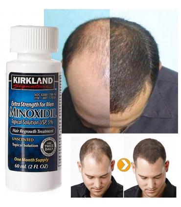 Миноксидил 5% Кёклэнд Сигнейча [Minoxidil 5% Kirkland Signature] применяется для лечения облысения у мужчин и женщин.